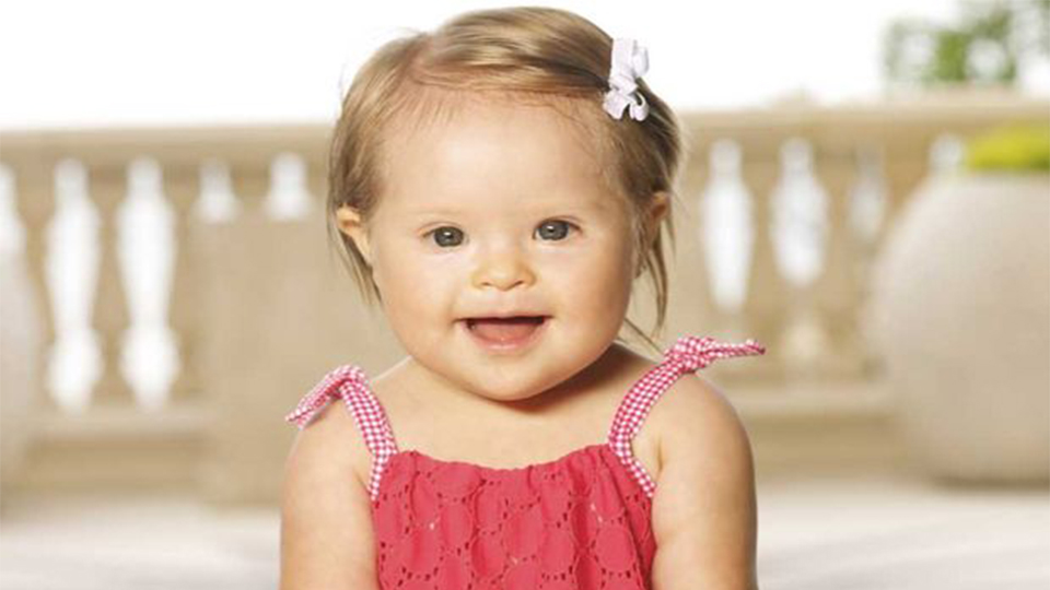 image of a baby girl with down syndrome